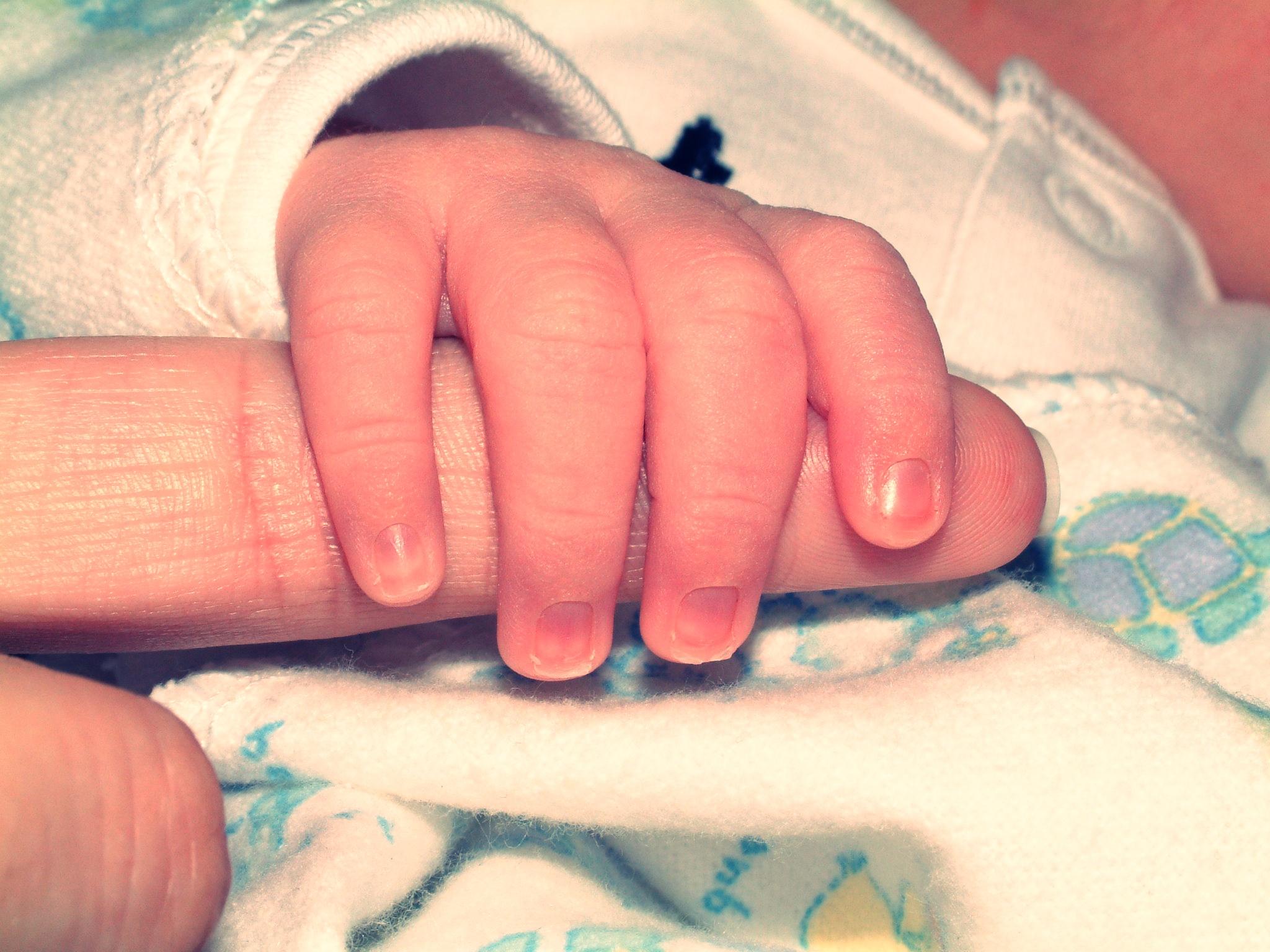 Ногти у новорожденных